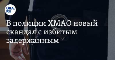В полиции ХМАО новый скандал с избитым задержанным