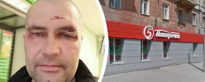 Новосибирца избили у кассы в магазине «Пятёрочка»